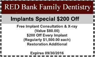 Coupon-Implants